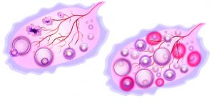 Поликистозните яйчници - какво трябва да знаем
